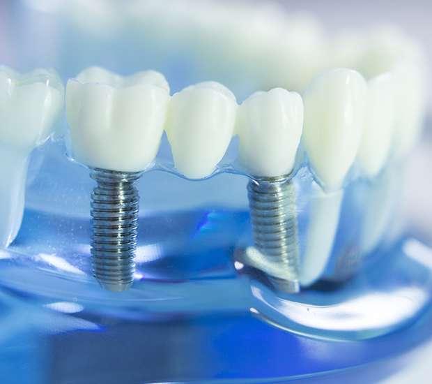 Santa Ana Dental Implants