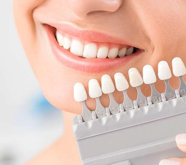 Santa Ana Dental Veneers and Dental Laminates