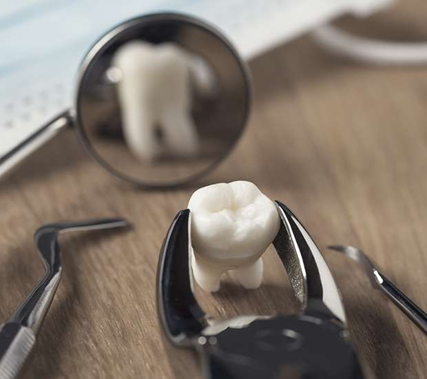 Santa Ana When Is a Tooth Extraction Necessary
